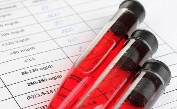 Πως να διαβάζουμε τις Εξετάσεις Αίματος